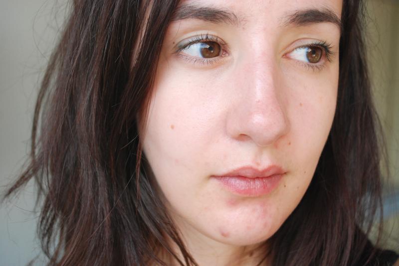 topo-acne.jpg